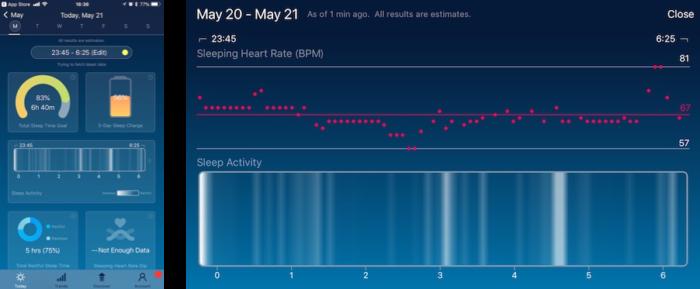 SleepWatch睡眠分析